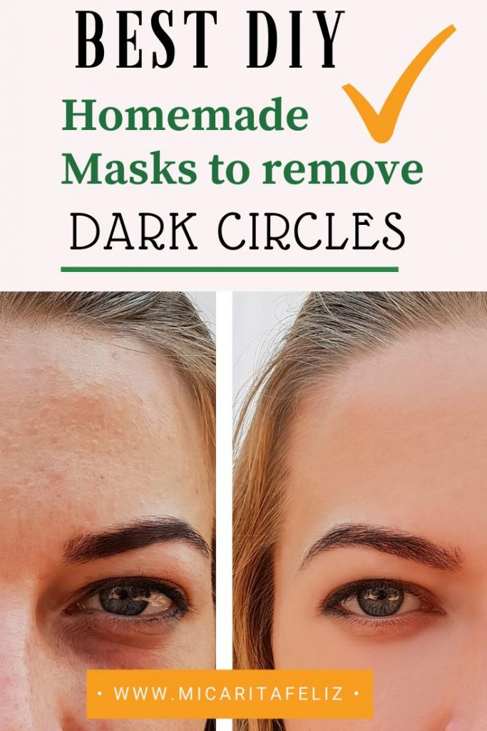 best way to remove dark circles under your eyes