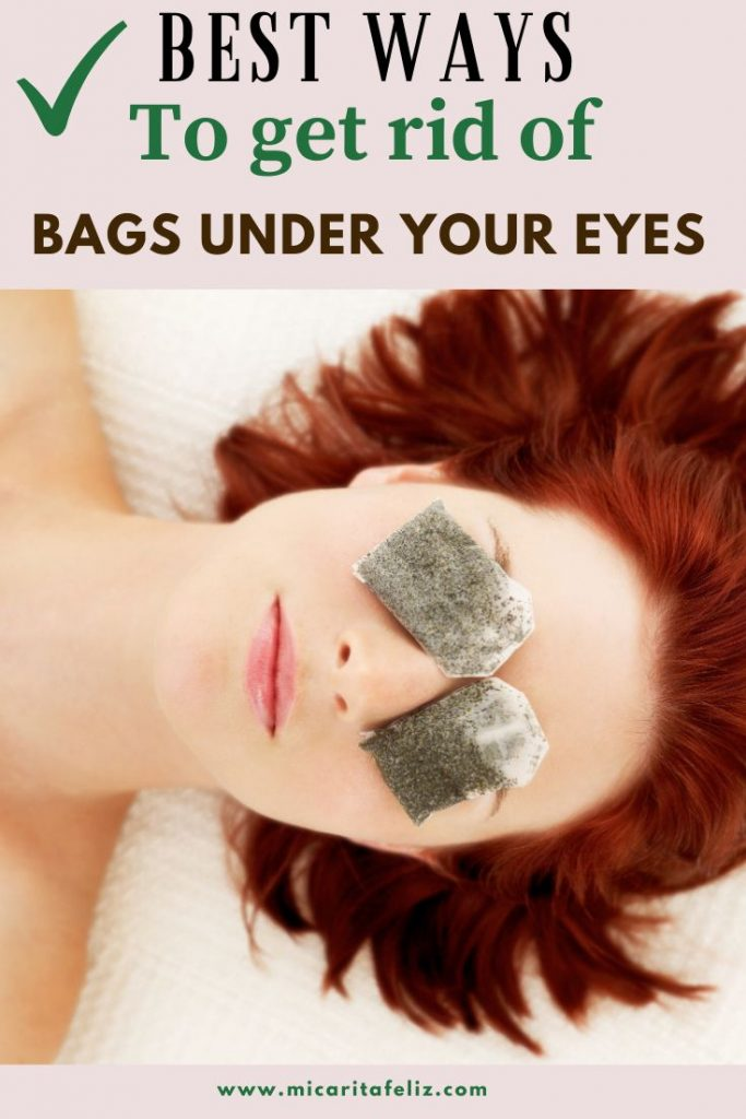 how to remove dark circles under your eyes